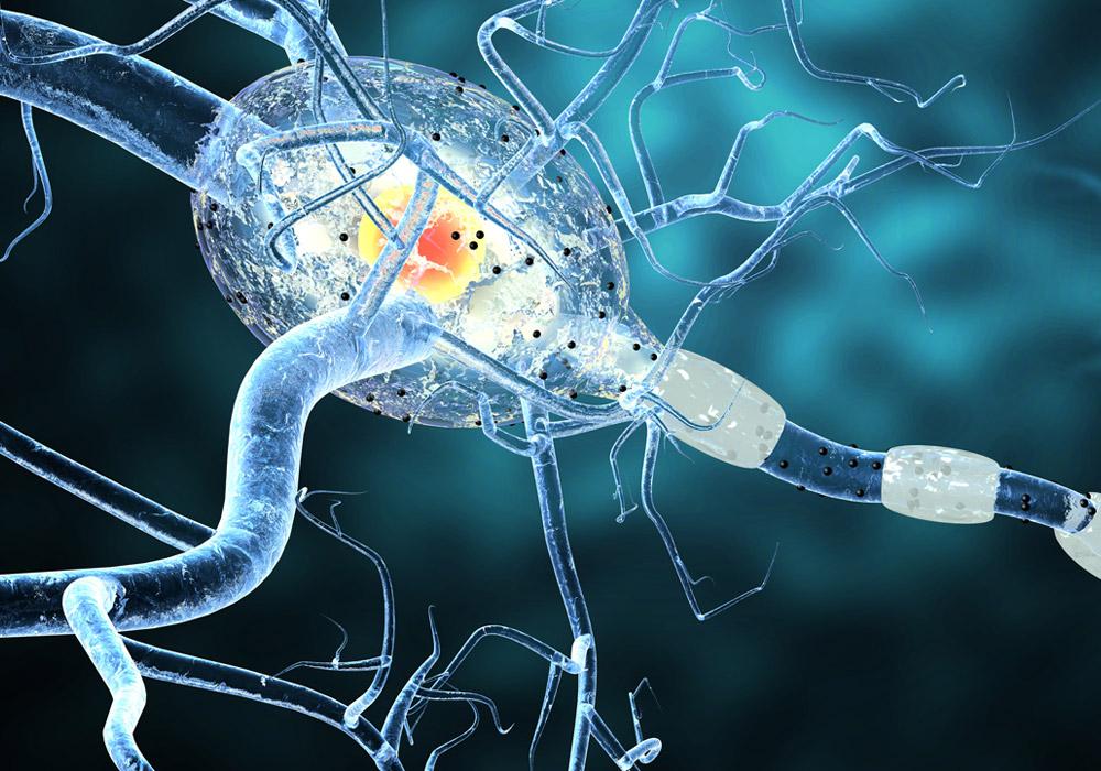 Sclerosi multipla, l'identificazione dei biomarcatori per una terapia personalizzata